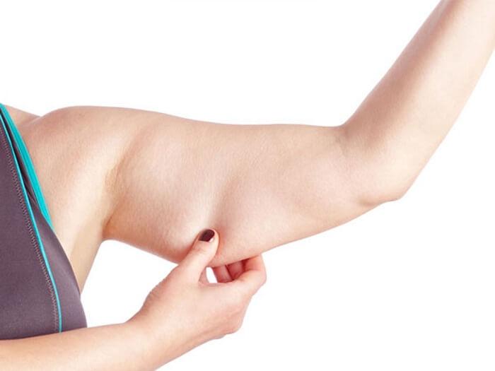 Mỡ bắp tay có thể do nhiều nguyên nhân gây ra