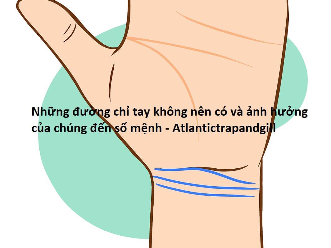 Những đường chỉ tay không nên có và ảnh hưởng của chúng đến số mệnh