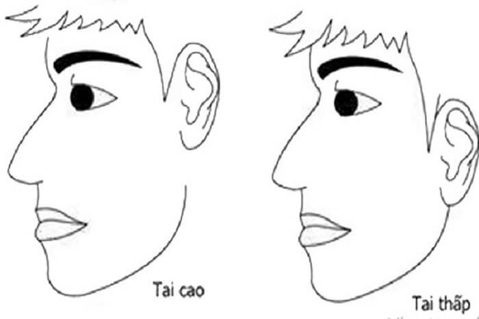Xác định vị trí tai cao hay thấp